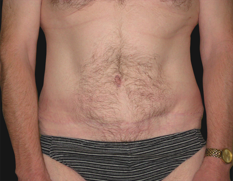 abdominoplasty_after