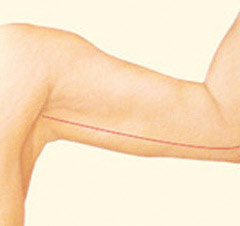 arm_lift_after