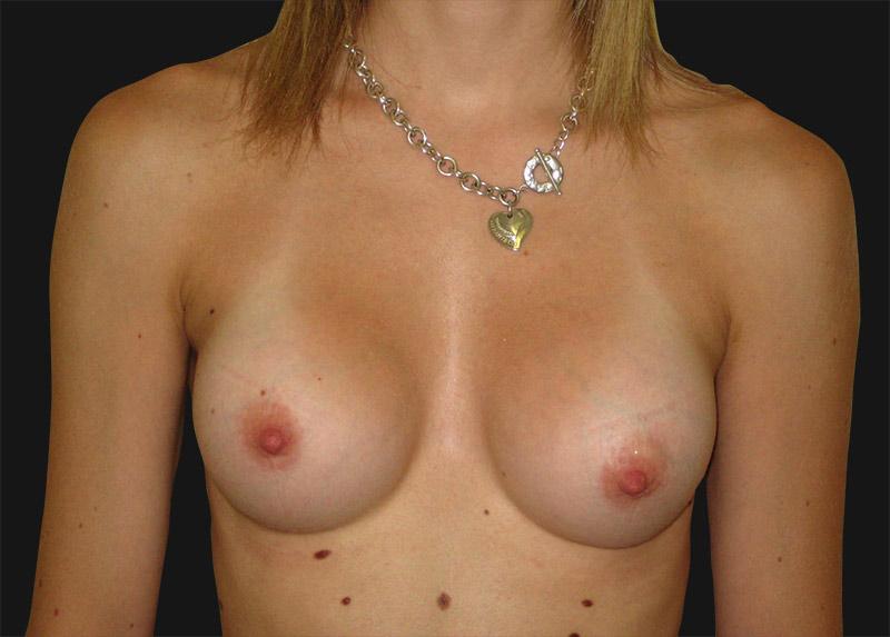 breast_enlargement_after