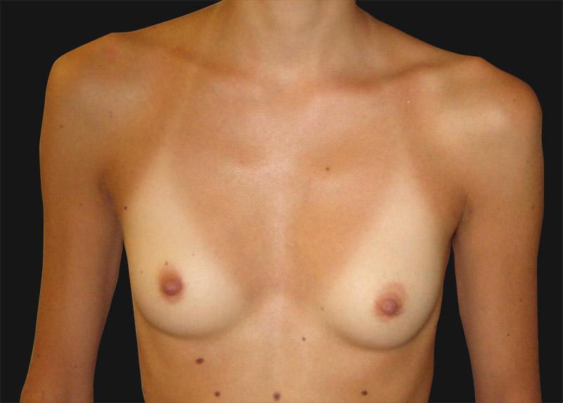 breast_enlargement_before