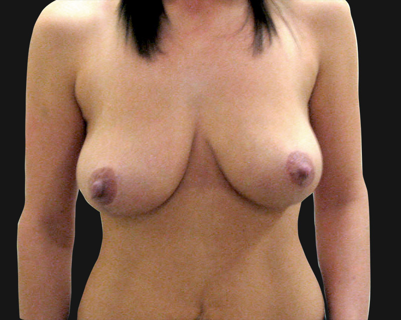 breast_reduction_after
