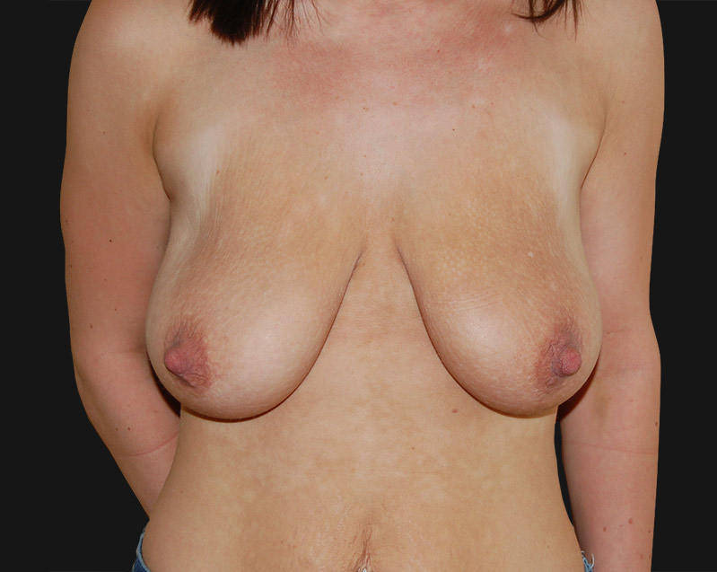 breast_reduction_before